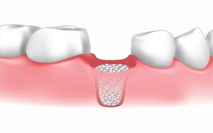 grefa-osoasa-dentara-1